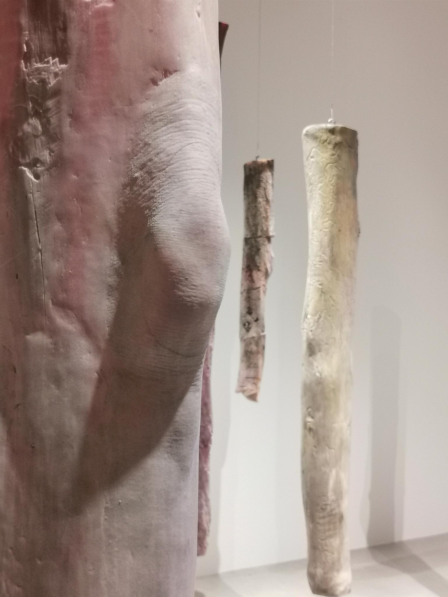 Mother's Legs